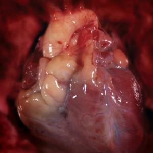 real_human_heart_surgery